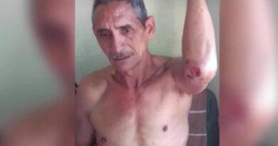 Hombre arrastrado por río El Limón sobrevivió al aferrarse a un pipote